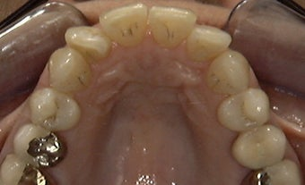 Invisalign: dramatic rotation of front teeth before 275754