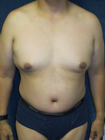 Tummy Tuck after 590040