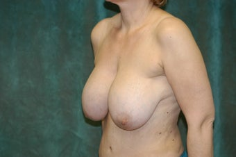 Women's Breast Augmentation: Redo  554000