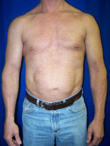 Pec Implants before 130083