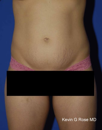 Full Tummy Tuck before 546348