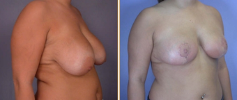 Breast Reduction & Lift before 270051
