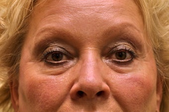 Upper & Lower Blepharoplasty with Fat Repositioning before 104061