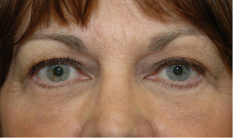 Lower blepharoplasty and fat grafting after 524914