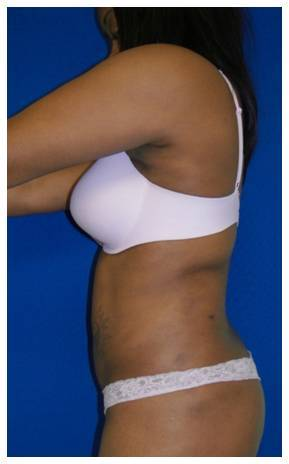 Laser Liposuction after 179113