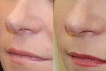 Non-Surgical Rhinoplasty with Silikon-1000 before 256516