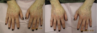 Radiesse hand rejuvenation before 390193