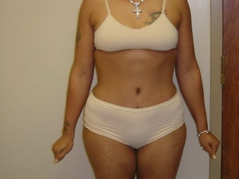 Tummy Tuck after 504649