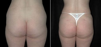 Buttock Augmentation  before 110101