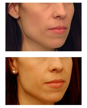 Cheek Augmentation 347496