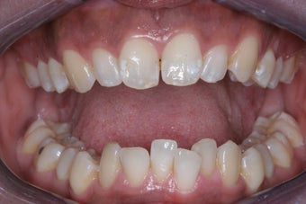 Invisalign before 372760