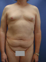 Male breast augmentation and tummy tuck before 106845