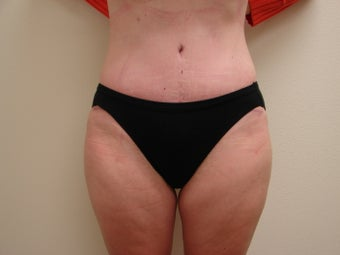 Tummy Tuck after 344813