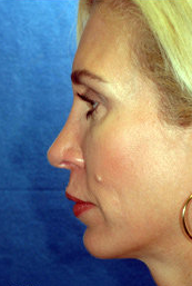 Chin Implant and Rhinoplasty after 324981