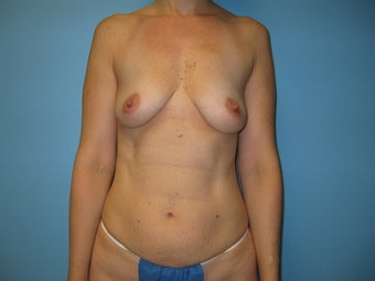 Mommy Makeover (breast augmentation and tummy tuck) before 285027