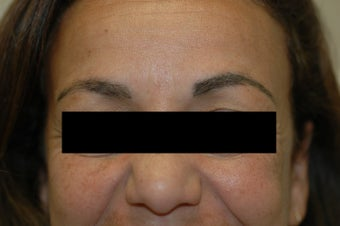 Permanent Makeup Removal Los Angeles Before and After Pictures after 641717