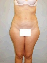 Liposuction Surgery before 143956