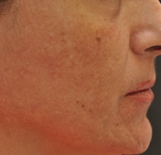 Acne Scarring 426030