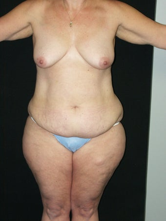 Belt Lipectomy before 379797