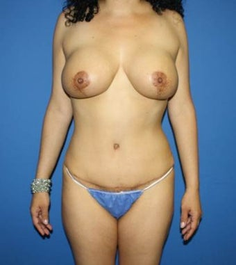 Mommy makeover, Breast Implants, Breast Lift, Tummy Tuck, Liposuction after 402388