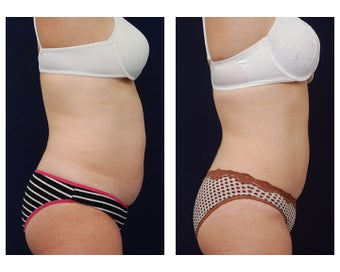 Liposuction 397002
