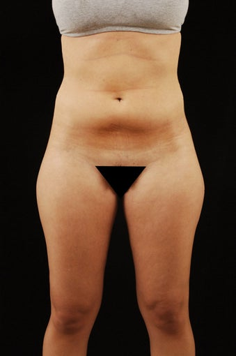 Liposuction before 512878