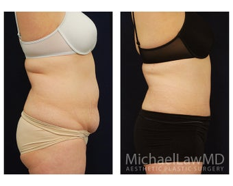 Abdominoplasty - Tummy Tuck 396085