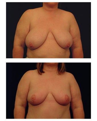 Breast Reduction before 286990
