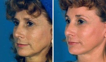 Cheek Lift and Augmentation before 296650