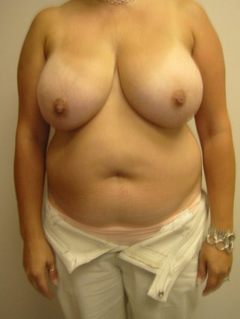 Liposuction of the Abdomen with Breast Reduction before 273955
