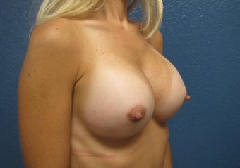 Breast Augmentation after 539059