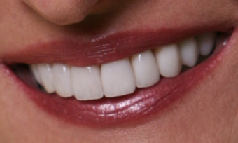 Porcelain Veneers after 213080