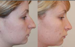 Rhinoplasty and Lip Enhancement with Silikon-1000