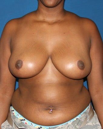 Breast Reduction after 643645