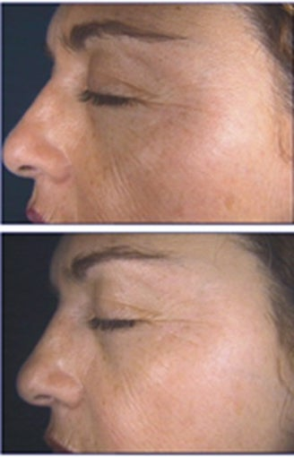 IPL for Freckles and Age Spots before 6364