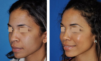 Rhinoplasty before 293540