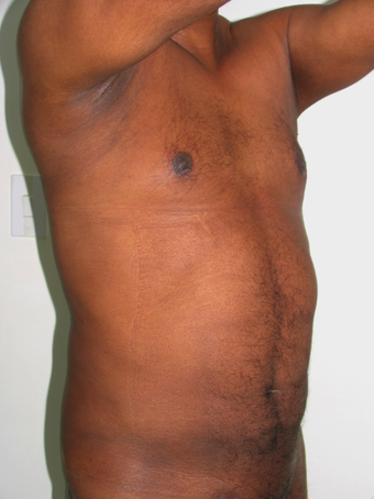 Tummy Liposuction after 229658