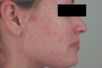 Laser Acne Scar Removal before 82979