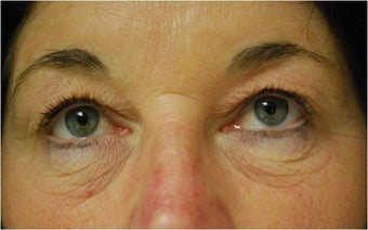 upper and lower Laser Blepharoplasty-Eyelid Surgery before 341305