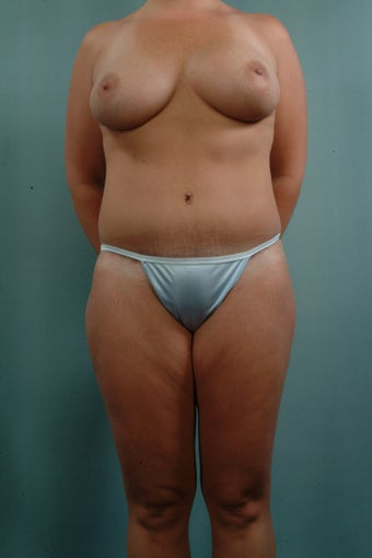 Breast Augmentation/Tummy Tuck/Liposuction after 241581