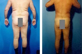 Liposuction before 636170