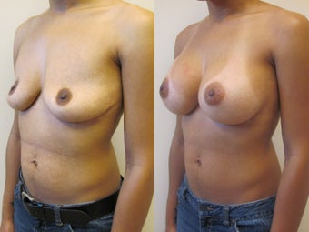 Breast augmentation after 220769
