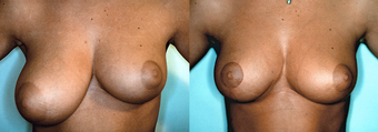 Asymmetric Breast Correction before 348004