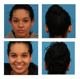Otoplasty before 369240
