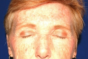 Facelift, Intense Pulsed Light  132103