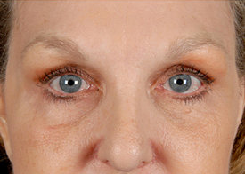 Browlift and Upper/Lower Eyelid Surgery after 253601