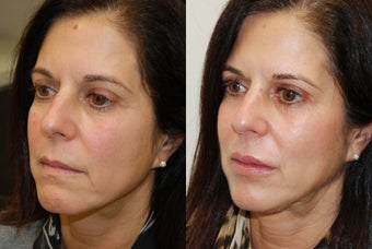 Lip Augmentation with Silikon-1000. 2 treatments. before 430186