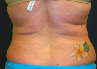 Lipo for back before 374829