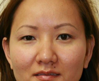 Double Eyelid procedure before 378907