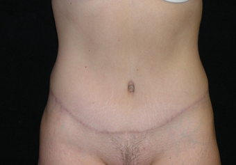 Abdominoplasty after 476707